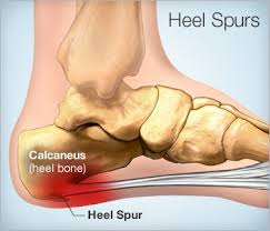 Heel Spurs treatment