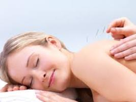 Acupuncture clinic Shepparton
